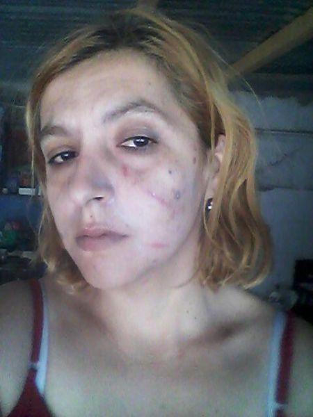 Georgina Ramos, con rastros de la agresión que sufrió.