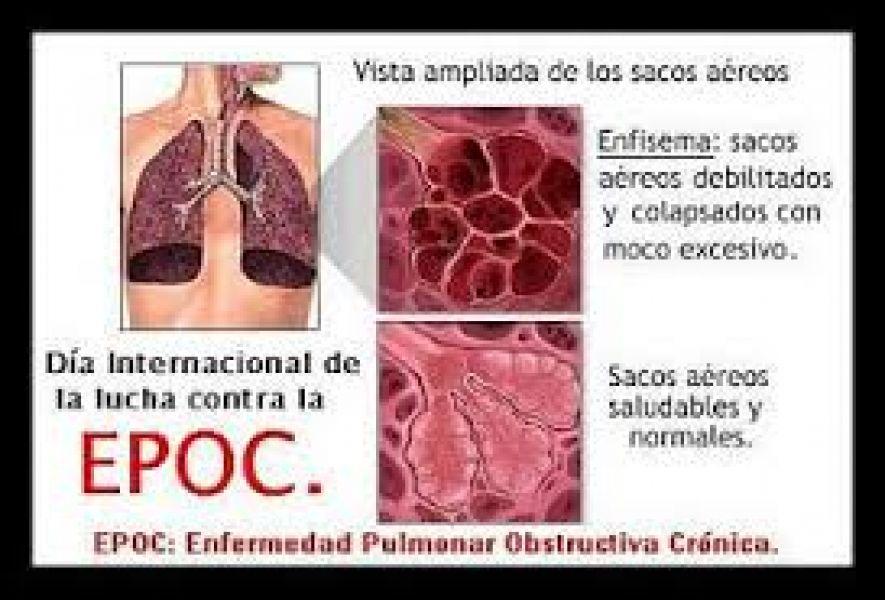 Ayer se conmemoró el Día Mundial del EPOC, una patología que se presenta usualmente en fumadores.