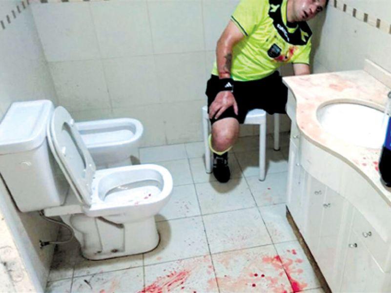Uno de los árbitros agredido por los hinchas en Pergamino. El SADRA pedirá la desafiliación del club.