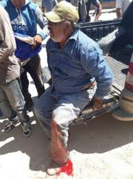 """""""Pasó un año y nadie nos escucha"""", dicen originarios. El 7 de febrero del año pasado Infantería le destrozó la pierna de un balazo a un manifestante."""